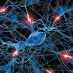 Το εγκεφαλικό επεισόδιο χρειάζεται άμεση θεραπεία με αργινίνη