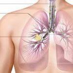 Κάποιοι υδατάνθρακες μπορούν να αυξήσουν δραστικά τον κίνδυνο εμφάνισης καρκίνου του πνεύμονα!
