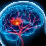 Οι χαμηλοί δείκτες βιταμίνης D και σοβαρά εγκεφαλικά επεισόδια!