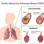 Aποφρακτική πνευμονοπάθεια και χαμηλά επίπεδα βιταμίνης D!