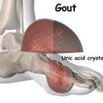 Η πρόσληψη βιταμίνης C καταπολεμά το υψηλό επίπεδο του ουρικού οξέος και την ουρική αρθρίτιδα!
